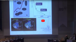 MRI in rectal cancer